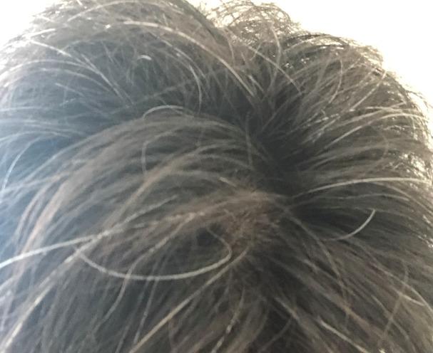 白髪染めする前(頭頂部)